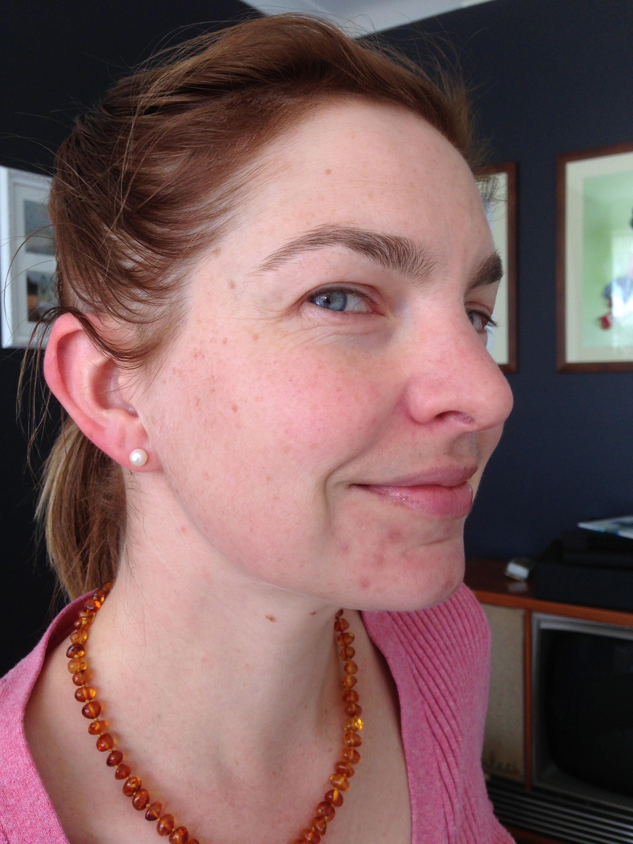 Blind Pimples Diary Of A Nifty Mum